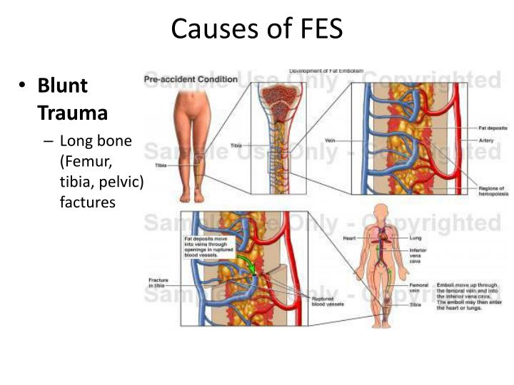 PPT Fat Embolism Syndrome FES PowerPoint Presentation ID 300124