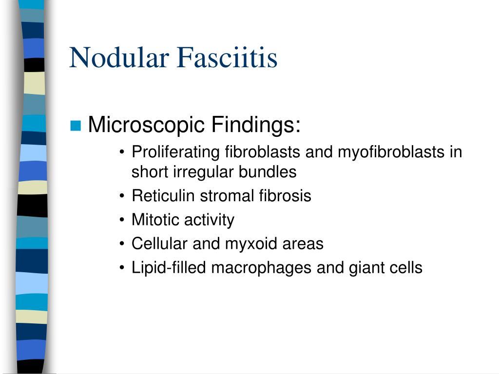Nodular Fasciitis