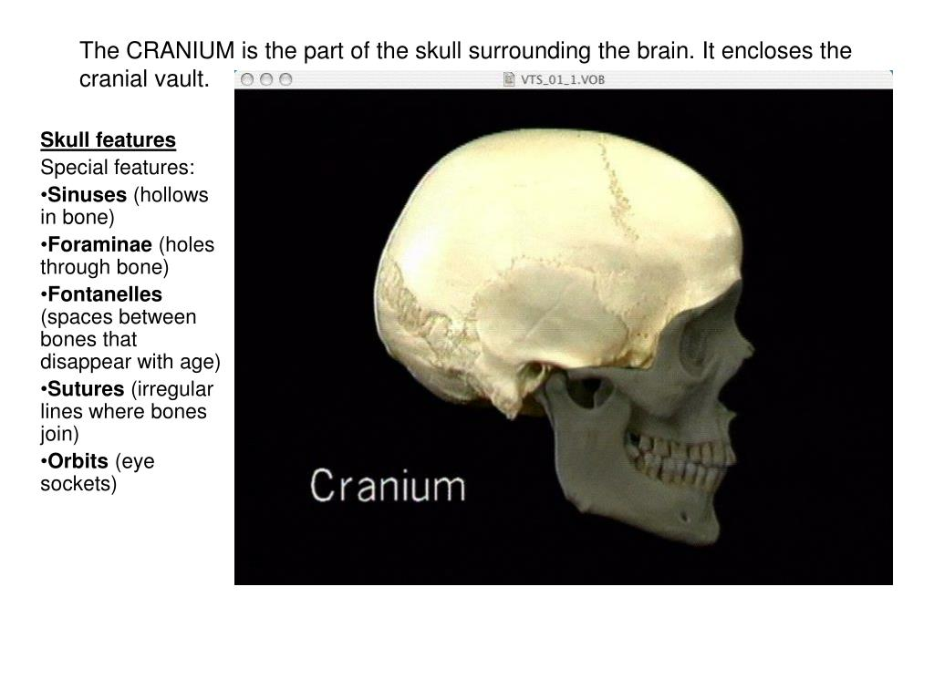 Ppt The Cranium Is The Part Of The Skull Surrounding The Brain It