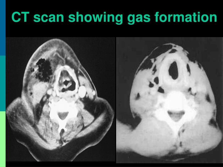 CT scan showing gas formation