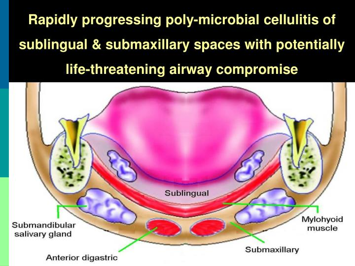 Rapidly progressing poly-microbial cellulitis of