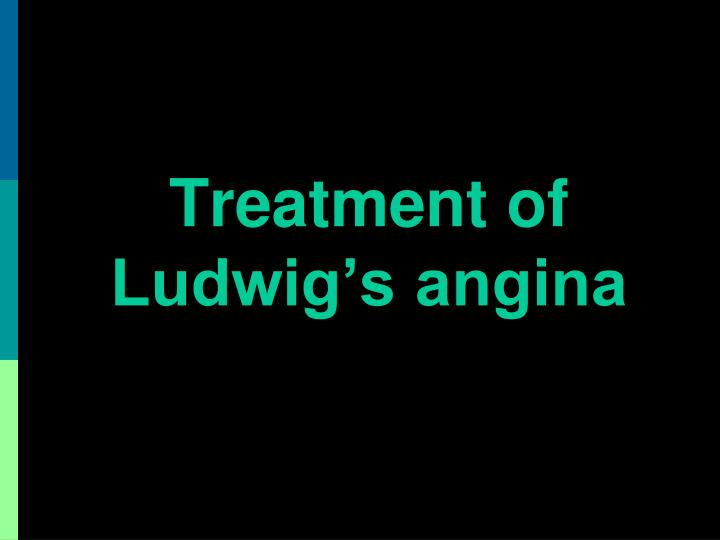 Treatment of    Ludwig's angina