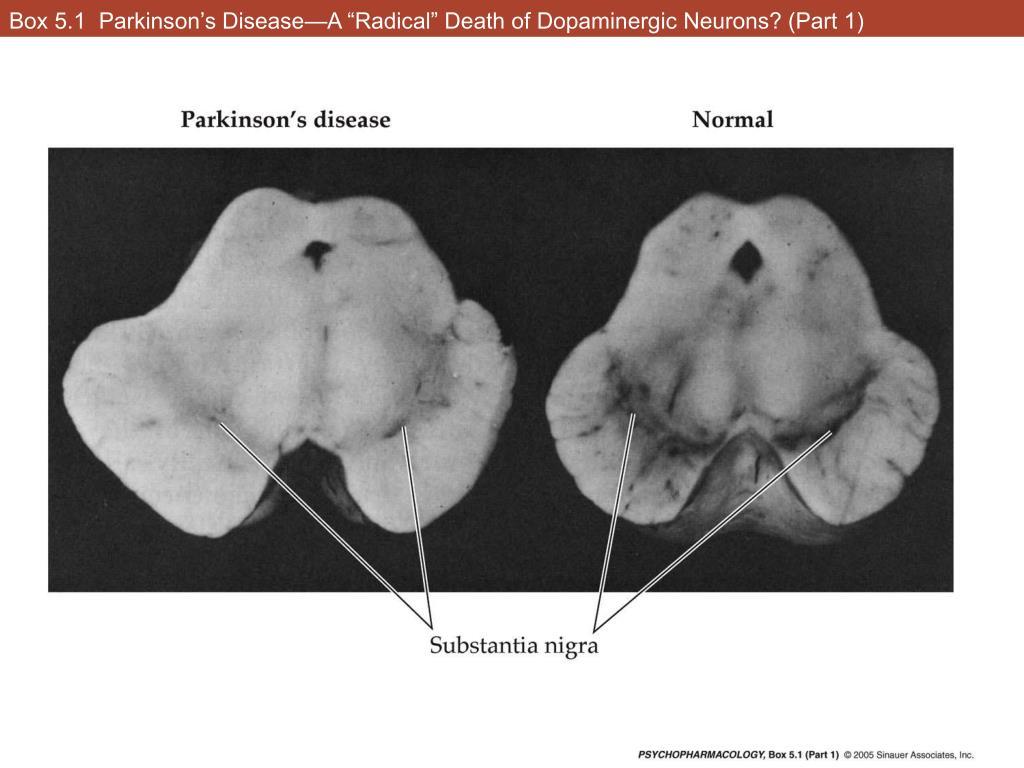"Box 5.1  Parkinson's Disease—A ""Radical"" Death of Dopaminergic Neurons? (Part 1)"