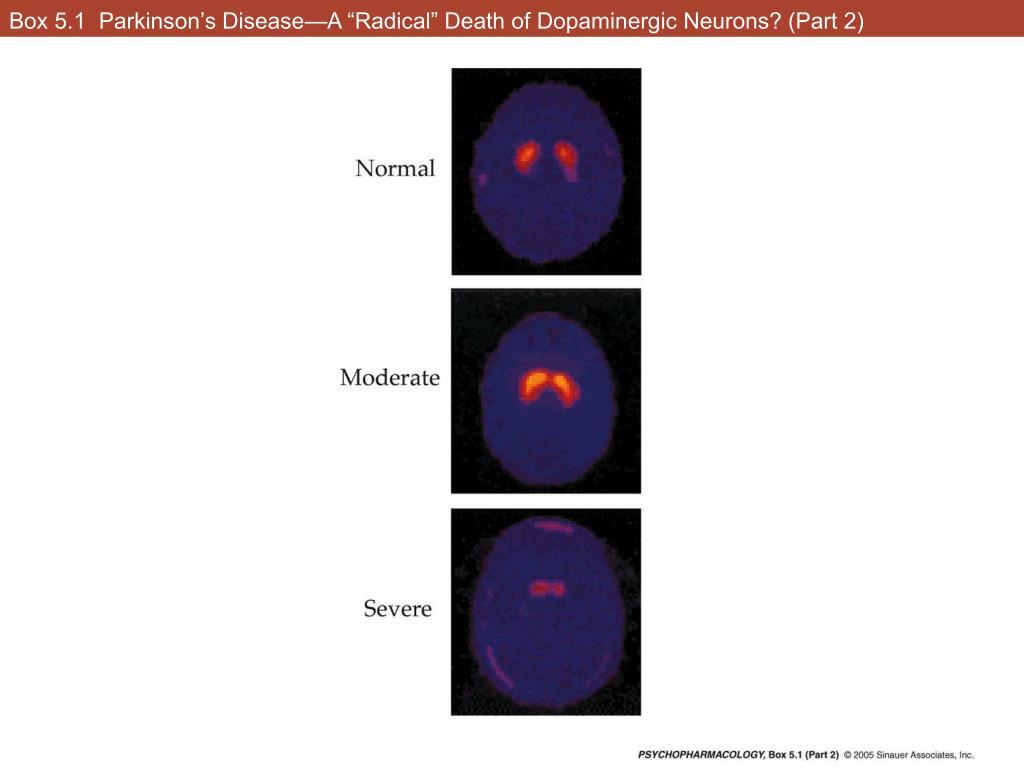 "Box 5.1  Parkinson's Disease—A ""Radical"" Death of Dopaminergic Neurons? (Part 2)"