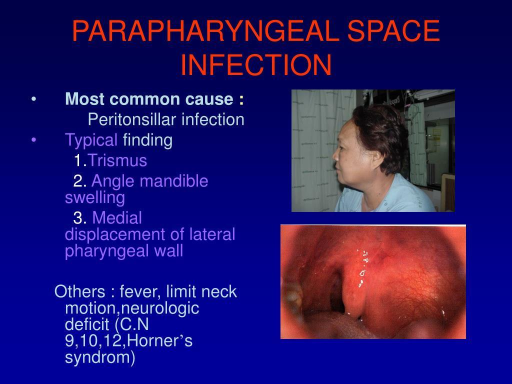 Ppt Pariyanan Jaruchinda Department Of Otolaryngology