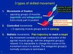 3 types of skilled movement