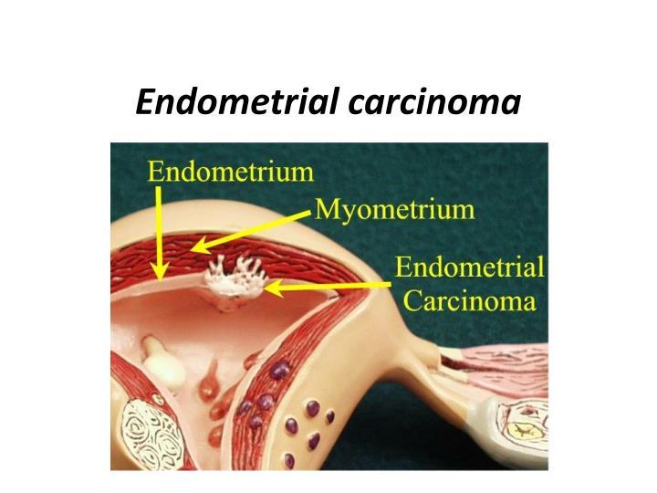 endometrial carcinoma n.