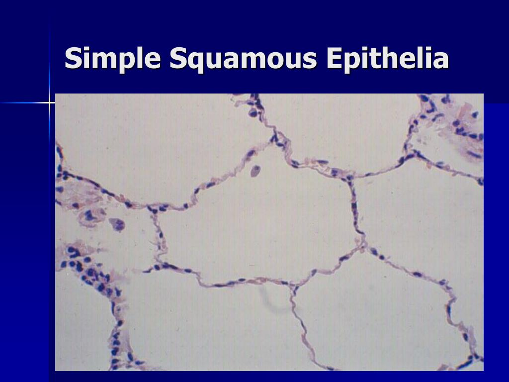 Simple Squamous Epithelia