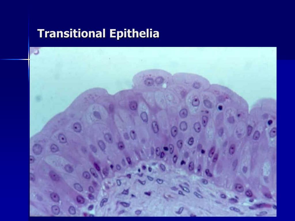 Transitional Epithelia