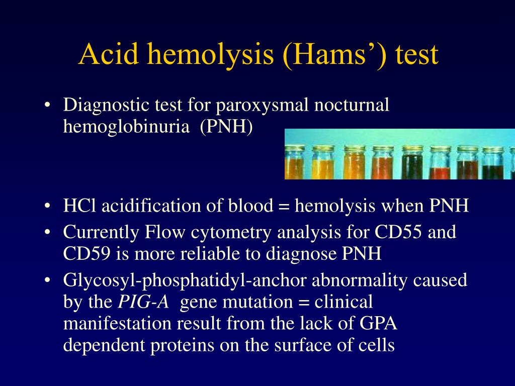 Acid hemolysis (Hams') test