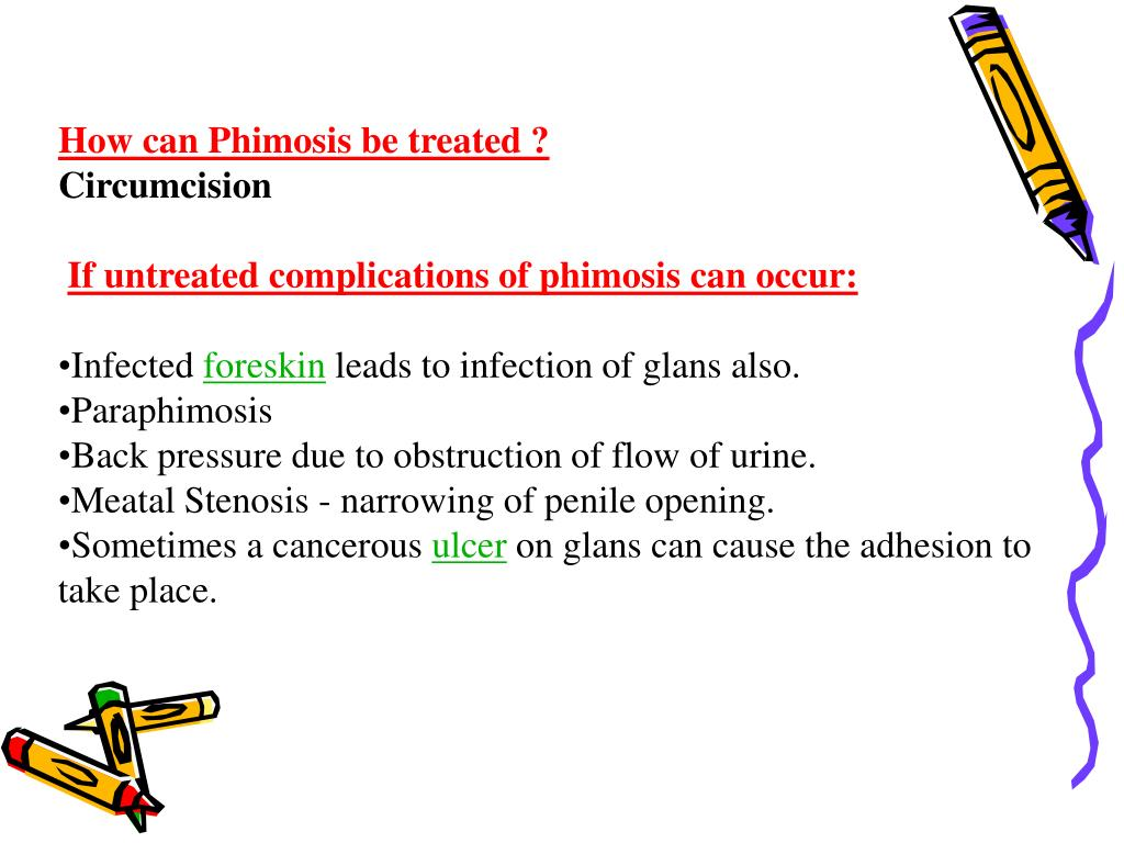 How can Phimosis be treated ?