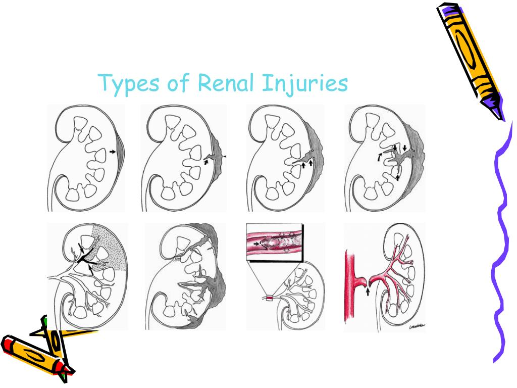 Types of Renal Injuries