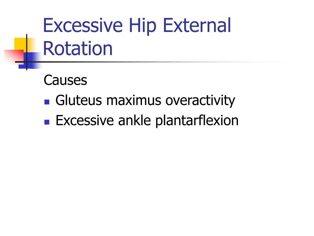 Excessive Hip External Rotation