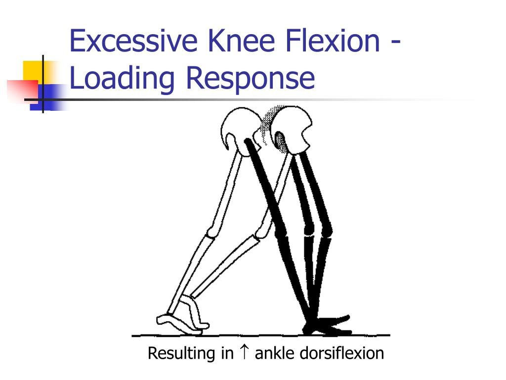 Excessive Knee Flexion - Loading Response