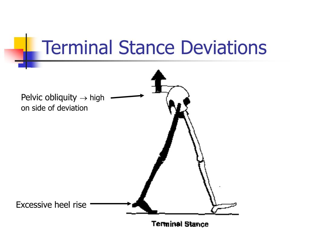 Terminal Stance Deviations