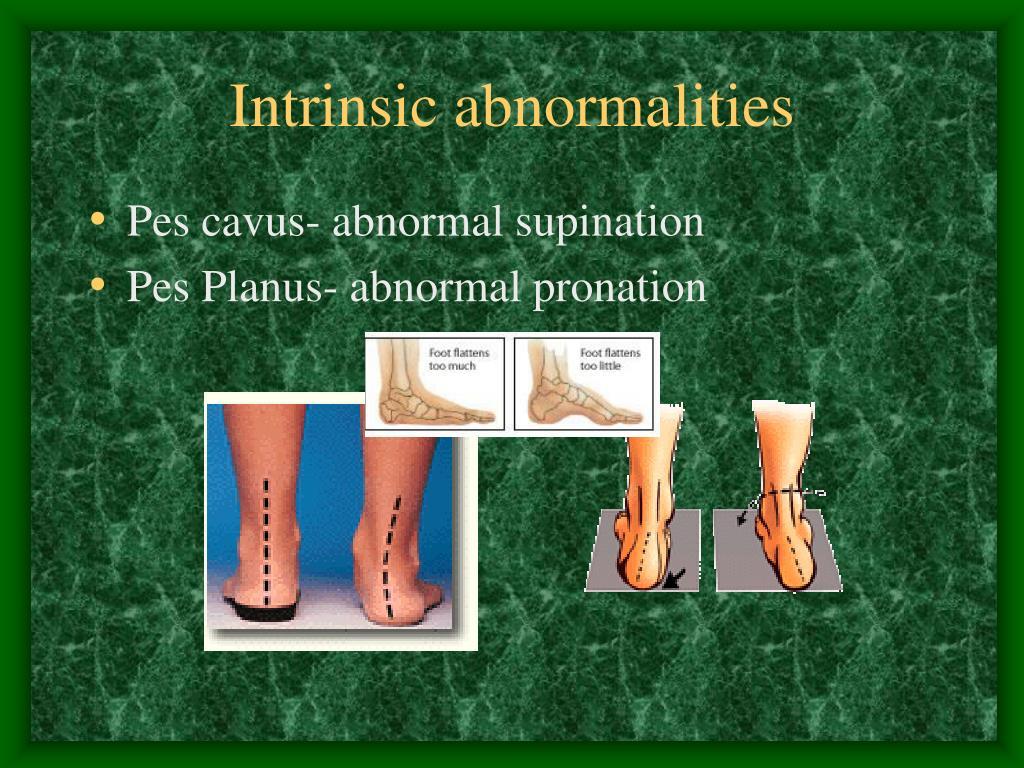 Intrinsic abnormalities