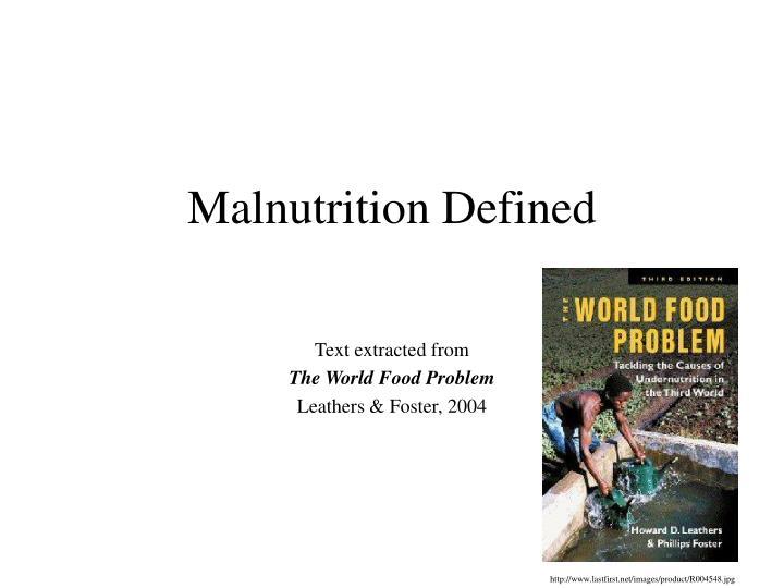 malnutrition defined n.