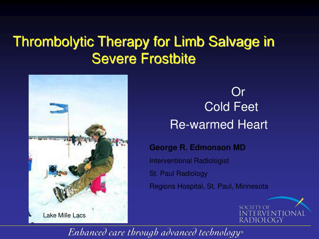 thrombolytic therapy for limb salvage in severe frostbite l.