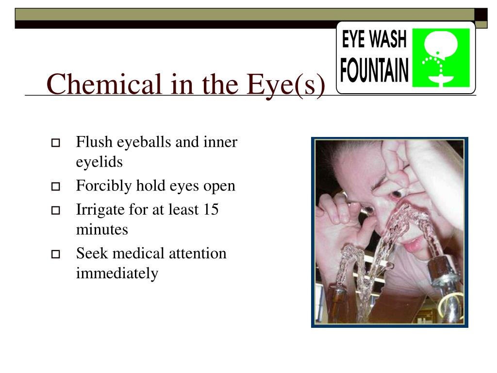 Chemical in the Eye(s)