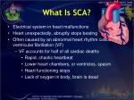 what is sca