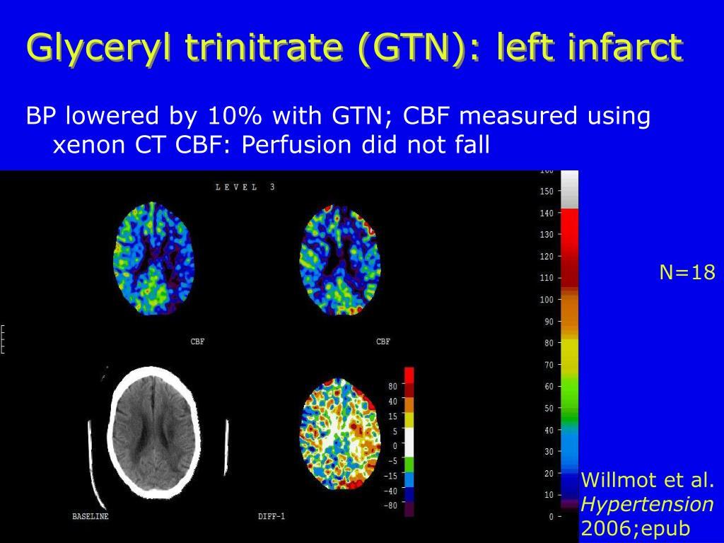 Glyceryl trinitrate (GTN): left infarct