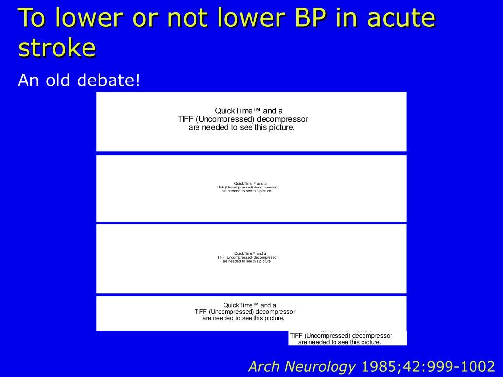 To lower or not lower BP in acute stroke