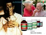 alzheimers sykdom2