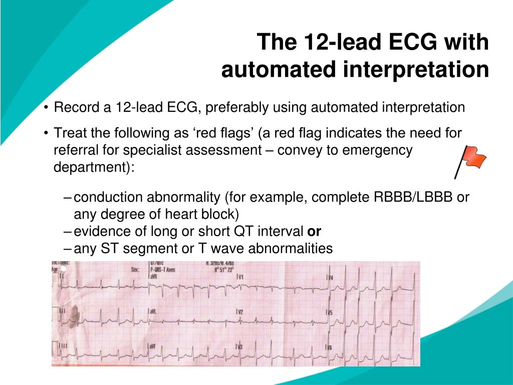 The 12-lead ECG with automated interpretation