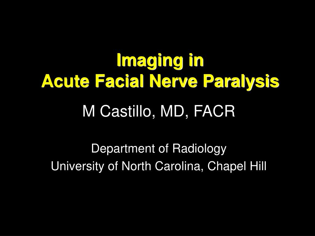 Ppt Imaging In Acute Facial Nerve Paralysis Powerpoint