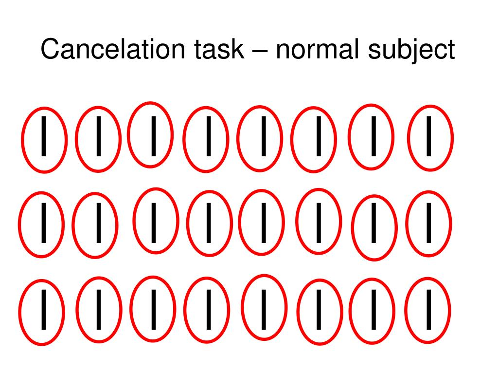 Cancelation task – normal subject