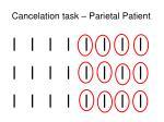 cancelation task parietal patient