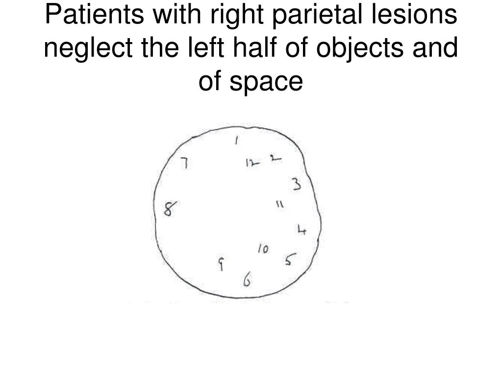 Patients with right parietal lesions neglect the left half of objects and of space
