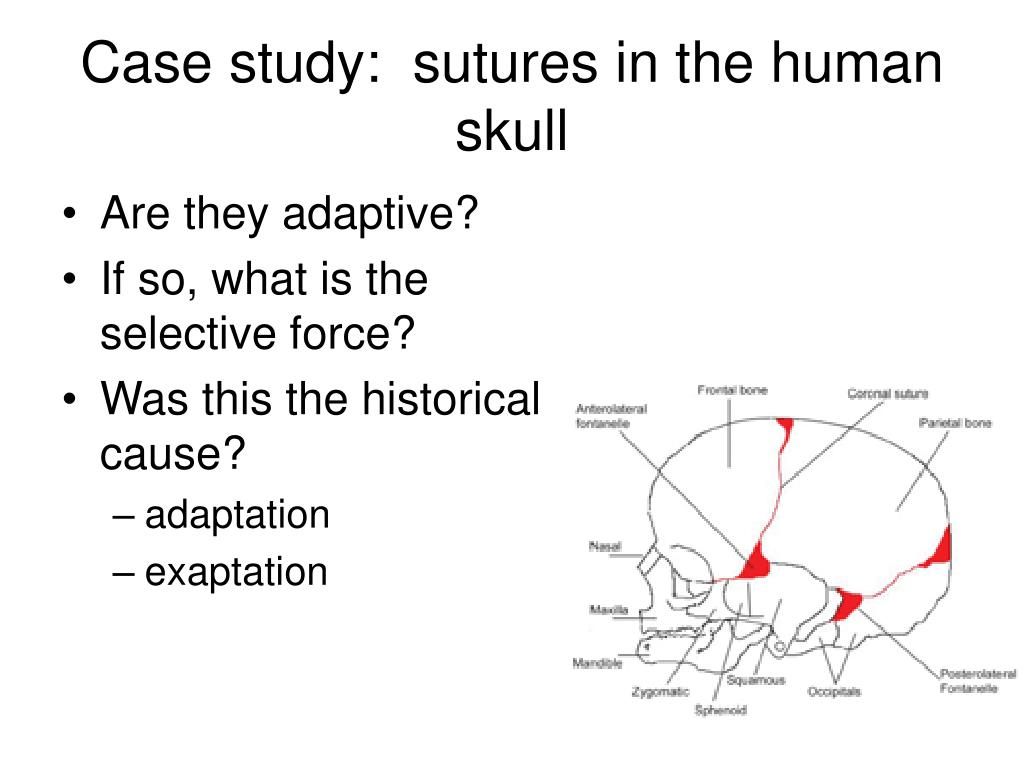 Case study:  sutures in the human skull