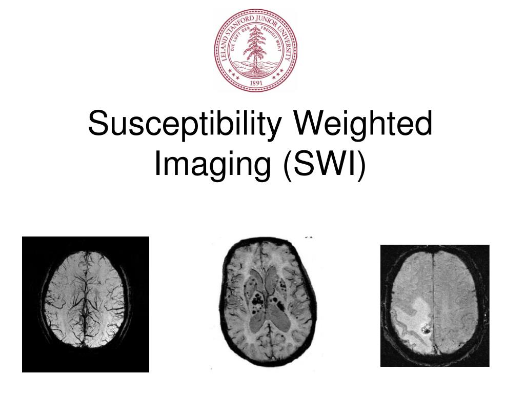 susceptibility weighted imaging swi l.