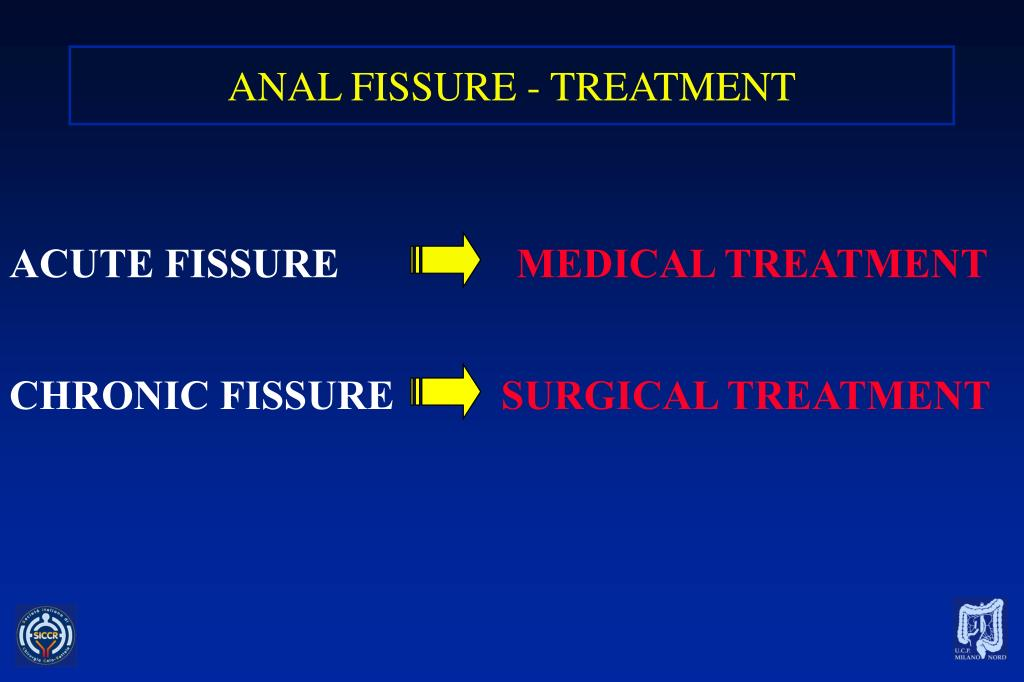 PPT - TREATMENT OF ANAL FISSURES PowerPoint Presentation