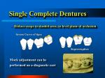 single complete dentures25