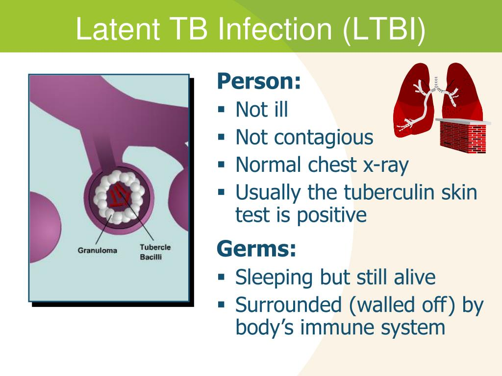 Can Tb Be Spread By Sharing Food