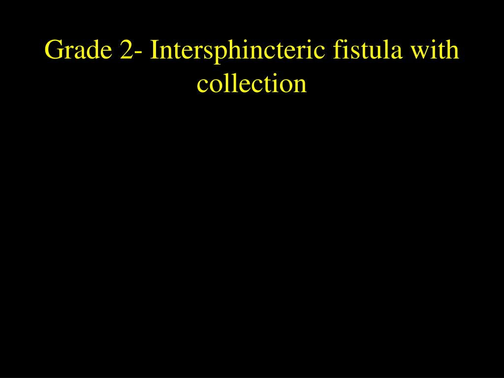 Grade 2- Intersphincteric fistula with collection