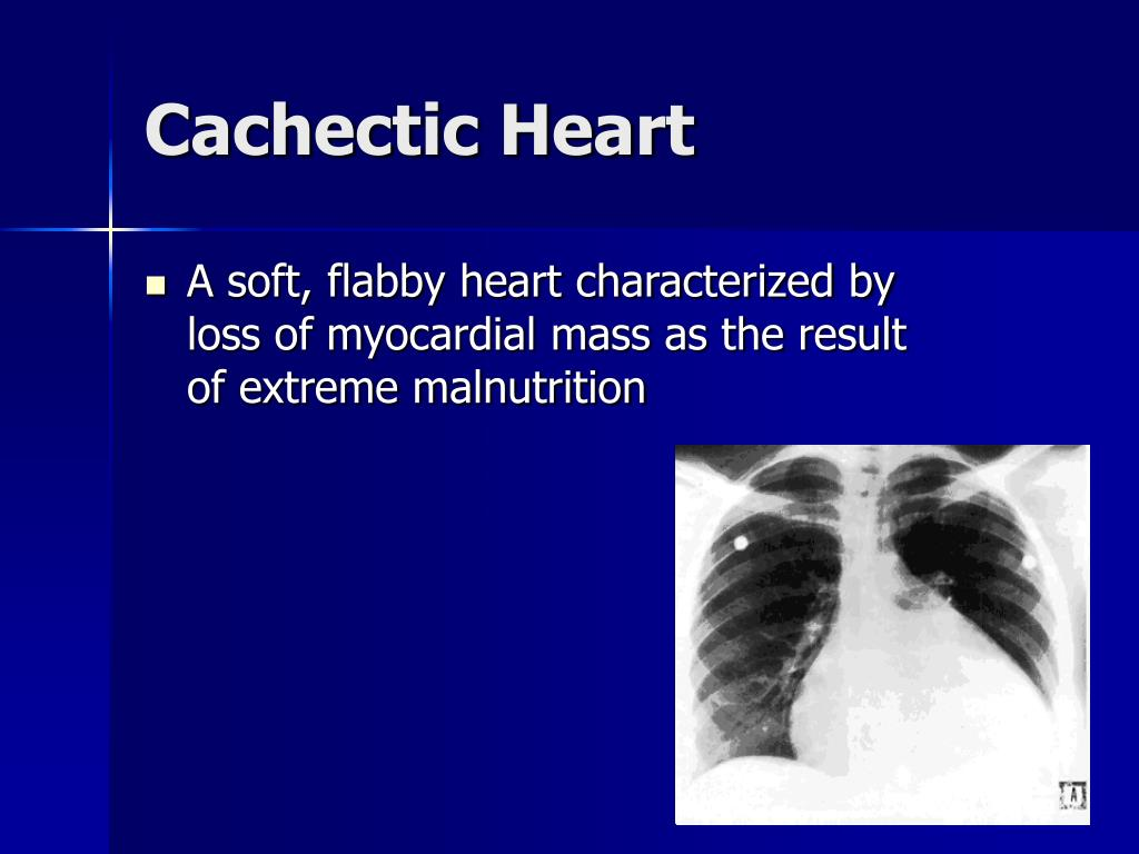 Cachectic Heart