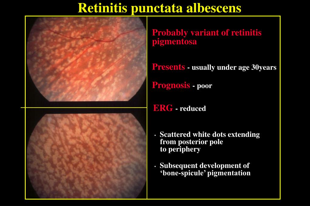 Ppt Hereditary Retinal Dystrophies Powerpoint