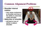 common alignment problems7