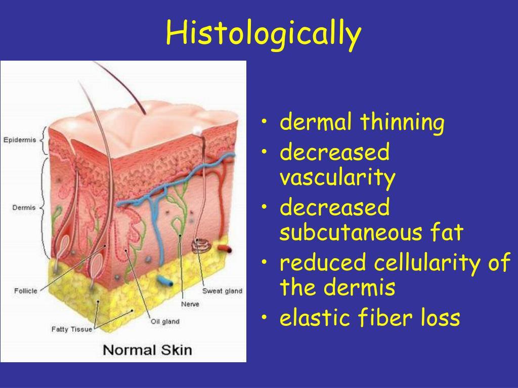 Histologically
