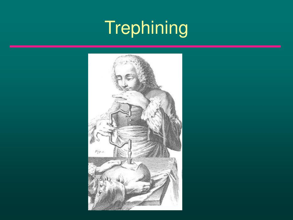 Trephining