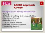 abcde approach airway