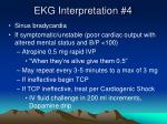 ekg interpretation 4