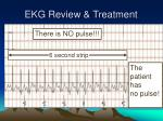 ekg review treatment