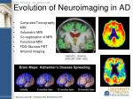 evolution of neuroimaging in ad