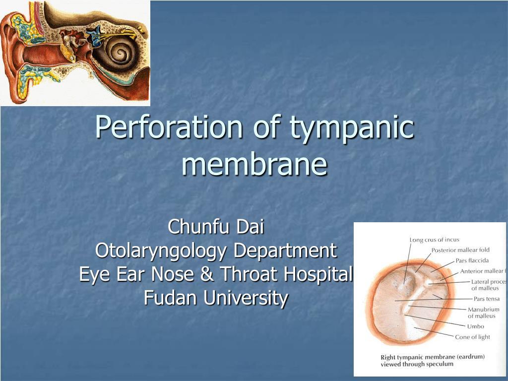 perforation of tympanic membrane l.