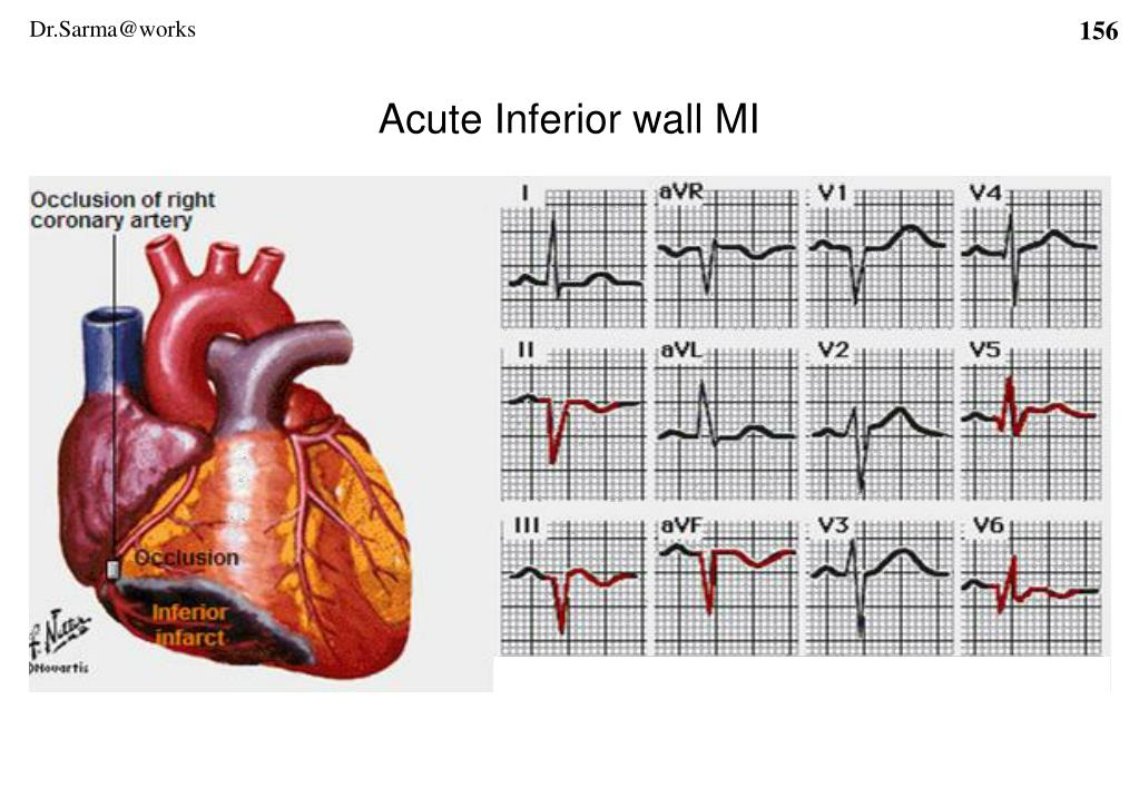 Acute Inferior wall MI