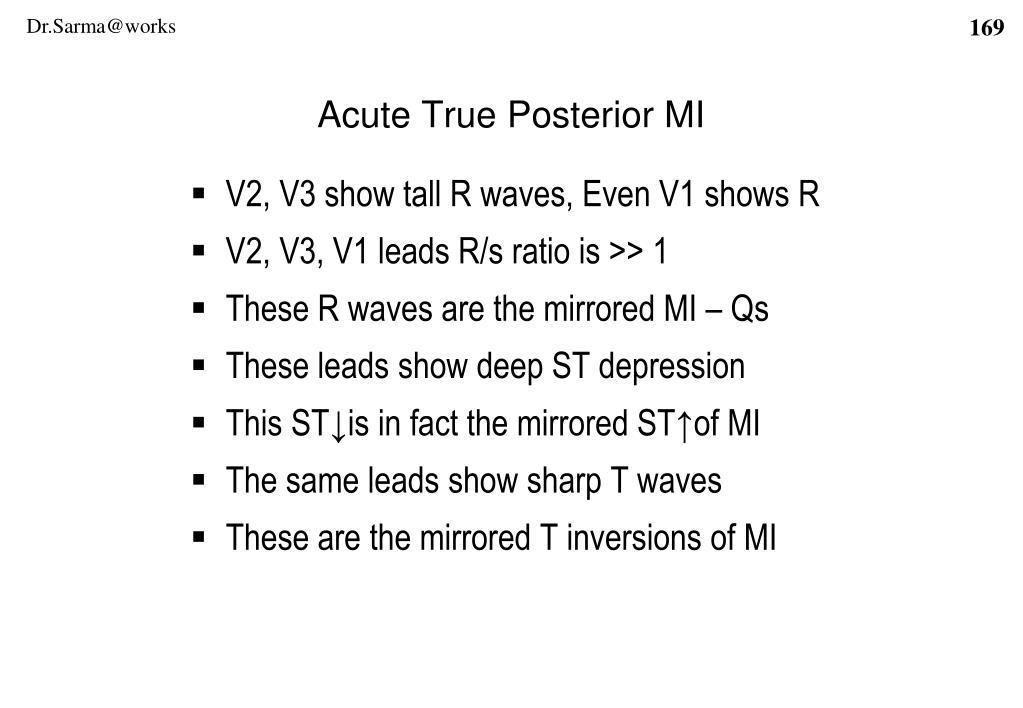 Acute True Posterior MI